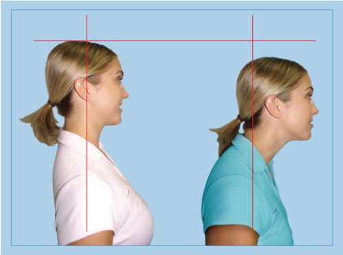 Boa Postura … o quão importante ela é?