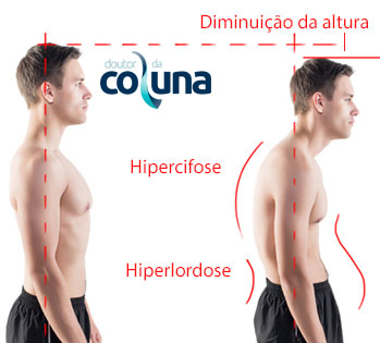Ultimate Postural Correction